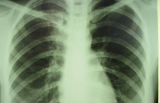 TB-Treatment_769953927