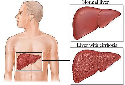 liver cirosis