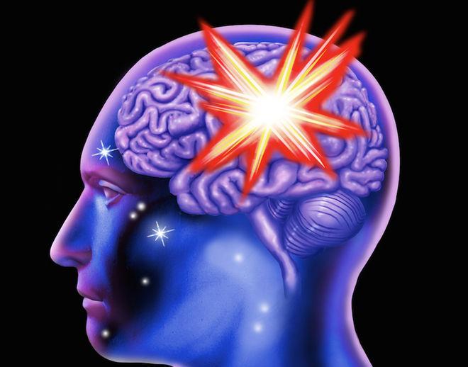 brain-stroke-160122