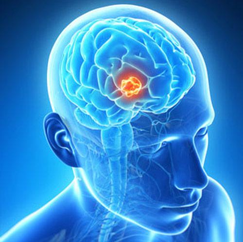brain tumur