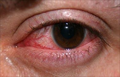 eye enfactions