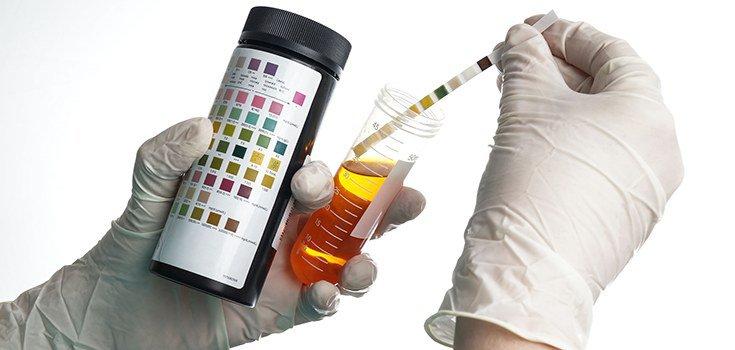 urine-dipstick-test